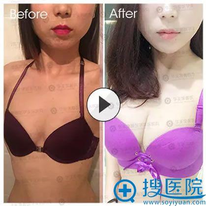 丰胸前后的效果对比照片