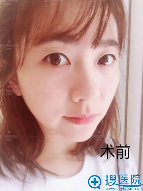 姑娘做双眼皮手术前的照片