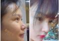 合肥新地整形医院隆鼻真实体验 术后对比及恢复期照片大分享