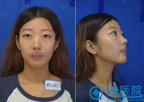 天津丽人整形医院假体隆鼻术前照