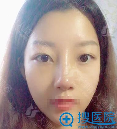 天津丽人假体隆鼻+鼻翼缩小术后15天恢复情况
