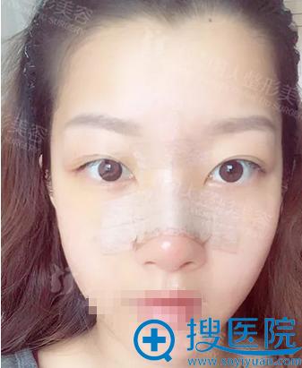 假体隆鼻+鼻翼缩小术后7天恢复效果