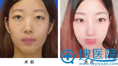 天津丽人假体隆鼻+鼻翼缩小术前术后对比