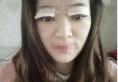 无锡尚美整形陶波全切双眼皮案例术后1个月恢复效果图