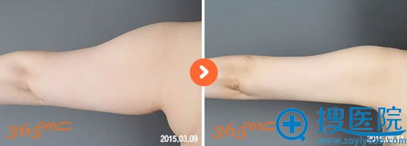 韩国365mc医院手臂吸脂前后对比案例