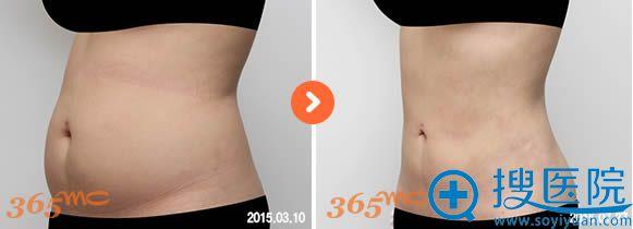 365mc腰腹部吸脂对比效果图