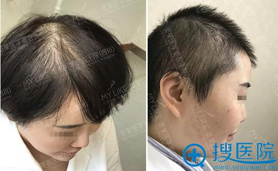 四川美莱微针植发术前术后对比照片