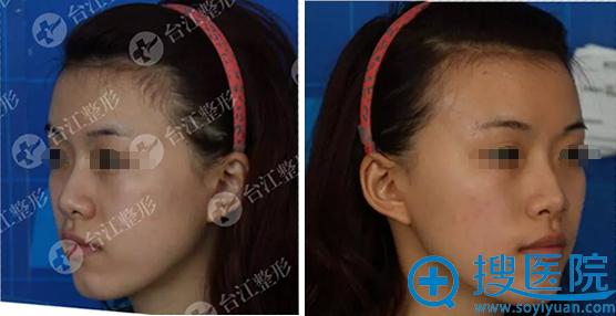 福州台江整形医院玻尿酸填充全脸术前照