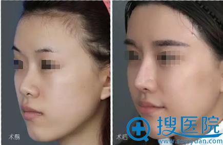 玻尿酸填充全脸术前术后对比