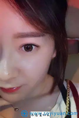 北京艺星双眼皮术后30天效果