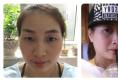 看我找上海复旦大学华东医院刘天一做的双眼皮案例效果怎么样