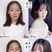 北京艺星整形美女双眼皮+开眼角全过程分享 术后3个月恢复效果