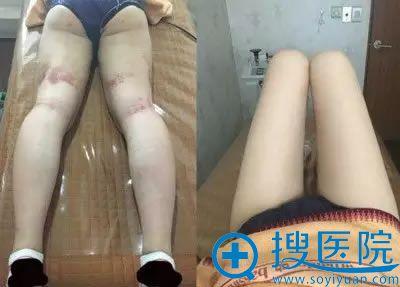 大腿吸脂手术第10天恢复图