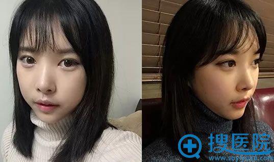 面部轮廓手术第15天效果
