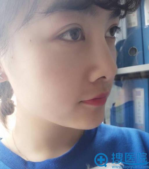 北京丽都注射玻尿酸隆鼻效果