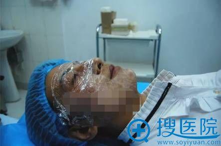 面部线雕手术前的麻醉过程