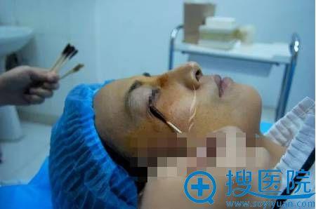 面部线雕手术之消毒过程