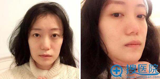 下颌角和下巴整形手术第47天