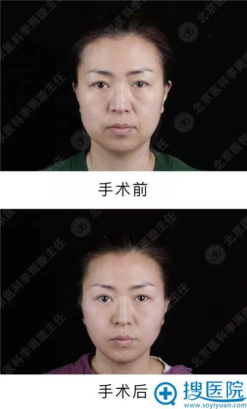 做面部线雕的术后效果对比图