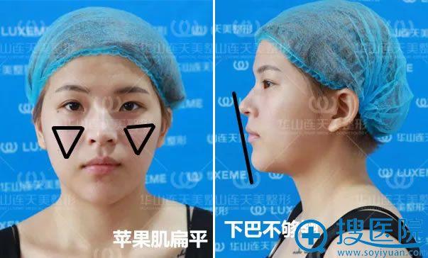 李婷注射前的扁平苹果肌和下巴