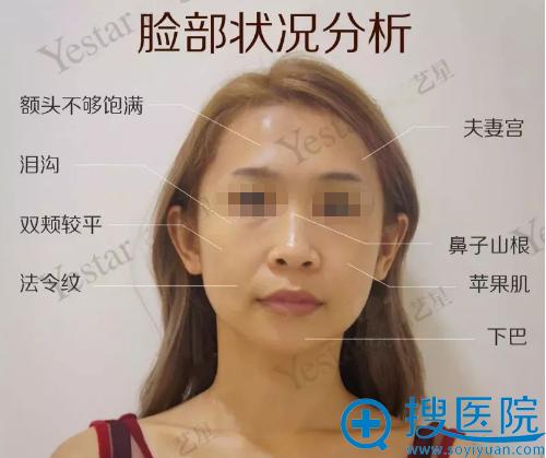 自体脂肪填充全脸术前脸部状况分析