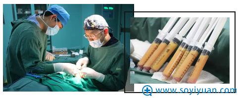 西安艺星整形美容医院自体脂肪填充全脸手术