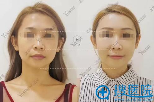 西安艺星全脸脂肪填充术前术后正面对比照