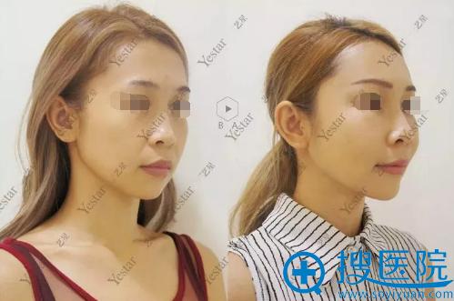 自体脂肪填充全脸术前术后斜侧面对比图