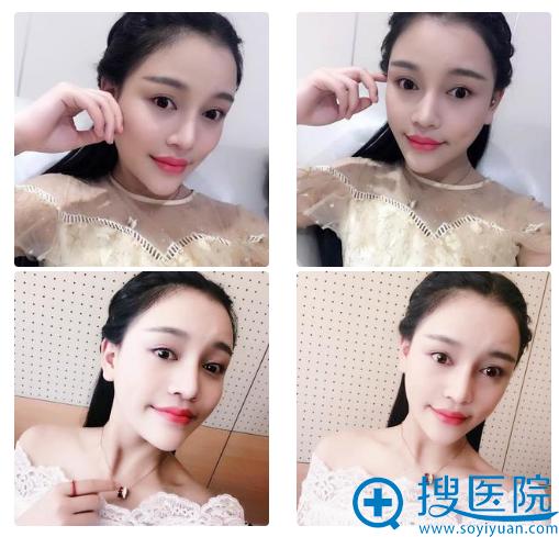 上海时光何晋龙做的下颌角案例7个月效果