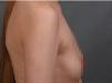 对比了西安高一生和美立方医院后选择高一生张林宏做了隆胸手术