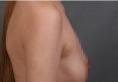 西安高一生张林宏医生隆胸怎么样?花3万元做的隆胸案例告诉你
