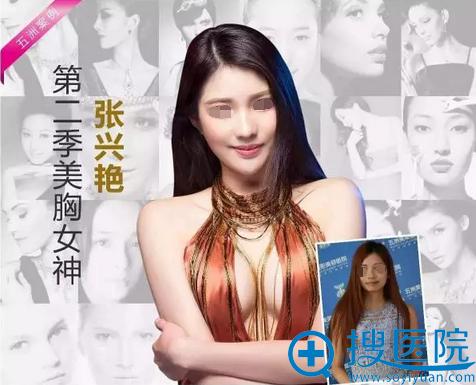 武汉五洲刘杨假体丰胸术前术后对比