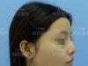深圳铭医肋软骨全鼻整形+自体脂肪填充全脸整体打造重塑美丽