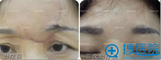 韩氏王丽华凹陷性疤痕修复案例