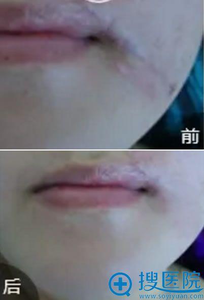 赵先生祛疤手术前后效果对比图片