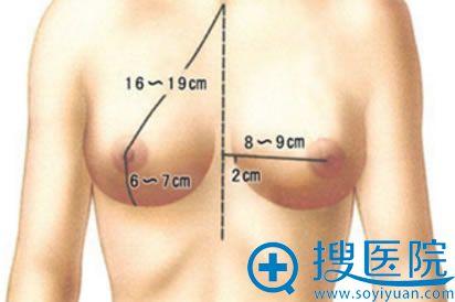 胸部整形图片