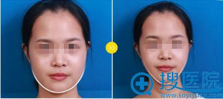 深圳美莱整形美容医院瘦脸案例对比图