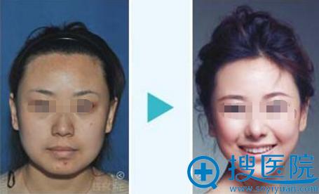 深圳美莱整形美容医院瘦脸针真人体验对比图