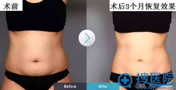 酷塑冷冻溶脂减腰腹部前后对比效果