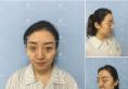 在哈尔滨索菲全脸脂肪填充已经1个月了,大家看术后效果自然吗