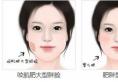 深圳美莱告诉你:瘦脸应该选还是瘦脸针?可以一起用吗?