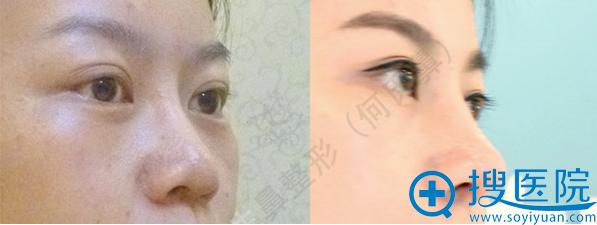 大连何氏达拉斯鼻综合+鼻基底填充案例