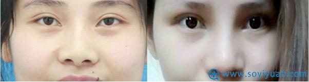 大连何医生膨体+鼻中隔软骨+耳软骨鼻修复案例