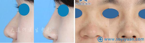 大脸何氏鼻翼缩小+鼻尖抬高+膨体隆鼻综合手术案例