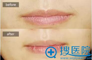 重庆星宸整形美容医院脱唇毛案例对比