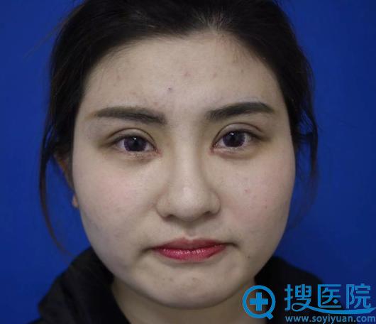 小花做完瘦脸针和双眼皮手术7天效果