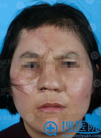 杨力一期全鼻再造术后效果