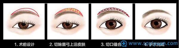 提眉术改变眉形示意图