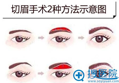 提眉术2种手术方法示意图
