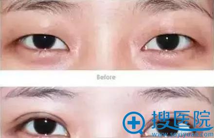 提眉术改善双眼皮术前术后对比
